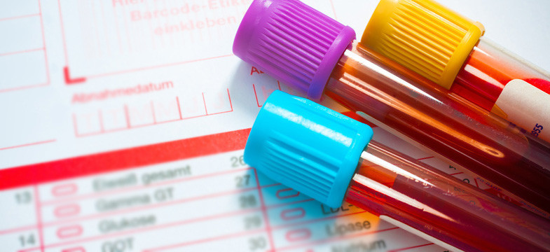Vitamin B12 Test: High Blood Levels