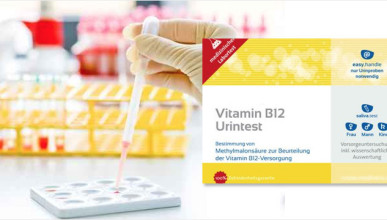 vitamin-b12-urine-test-785x360