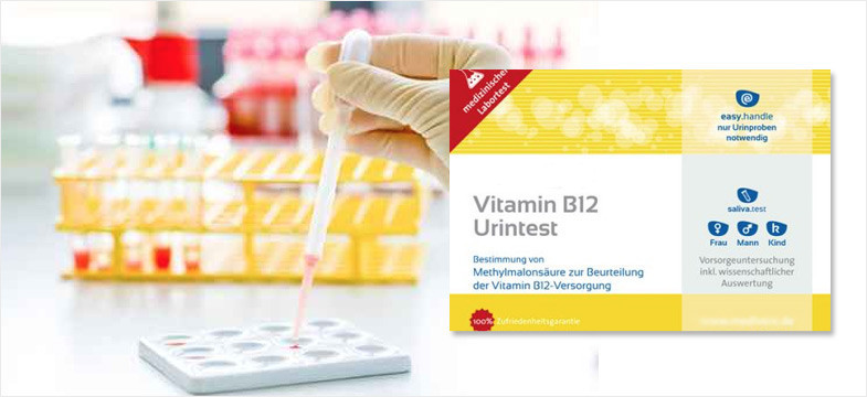 Vitamin B12 Deficiency Urine Test