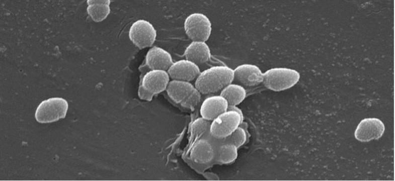 Vitamin B12 and Gut Bacteria